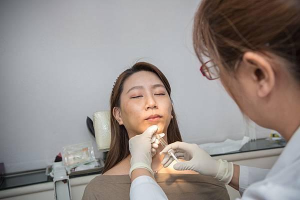 18-黑糖妹玻尿酸下巴短小內縮高雄美妍醫美診所整形外科.jpg