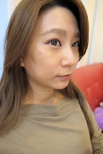 24-黑糖妹玻尿酸下巴短小內縮高雄美妍醫美診所整形外科.jpg