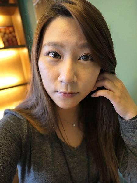 26-黑糖妹玻尿酸下巴短小內縮高雄美妍醫美診所整形外科.jpg