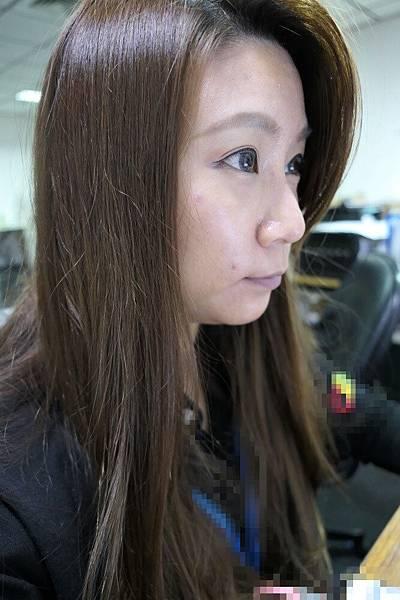 29-黑糖妹玻尿酸下巴短小內縮高雄美妍醫美診所整形外科.jpg