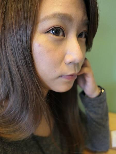 28-黑糖妹玻尿酸下巴短小內縮高雄美妍醫美診所整形外科.jpg
