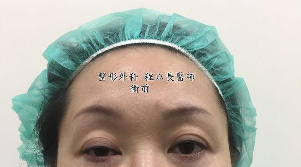 06-眼瞼下垂矯正手術案例程以長美妍醫美診所整形外科.jpg
