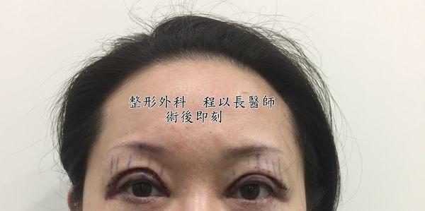 07-眼瞼下垂矯正手術案例程以長美妍醫美診所整形外科.jpg