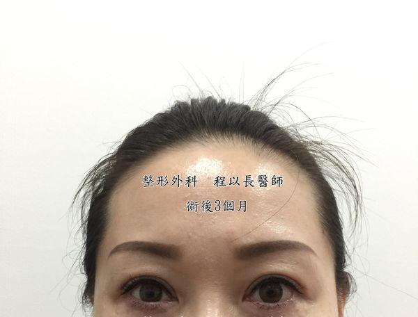 09-眼瞼下垂矯正手術案例程以長美妍醫美診所整形外科.jpg