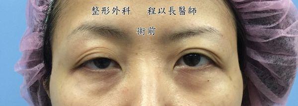 10-眼瞼下垂矯正手術案例程以長美妍醫美診所整形外科.jpg