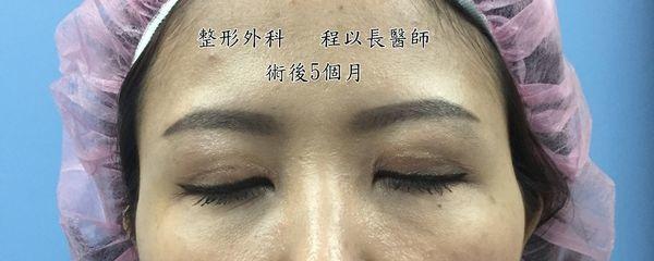 12-眼瞼下垂矯正手術案例程以長美妍醫美診所整形外科.jpg