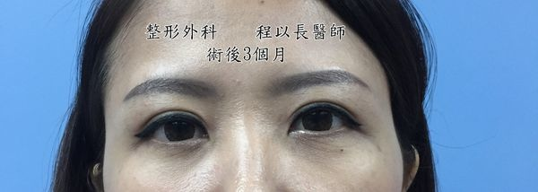 11-眼瞼下垂矯正手術案例程以長美妍醫美診所整形外科.jpg