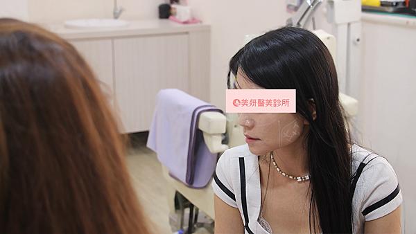 06-肉毒桿菌抬頭紋咀嚼肌高雄黃凱君美妍醫美診所微整形.png