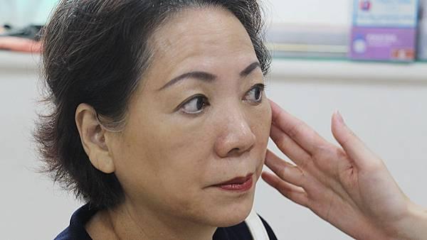 10瑀媽術後一週回診-王彥文醫師埋線藍鑽魚骨線來幫幫臉皮的忙高雄美妍醫美診所整形外科.jpg