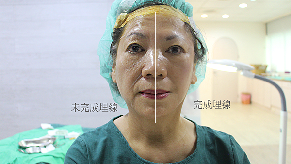 07術中記錄半張臉-王彥文醫師埋線藍鑽魚骨線來幫幫臉皮的忙高雄美妍醫美診所整形外科.png