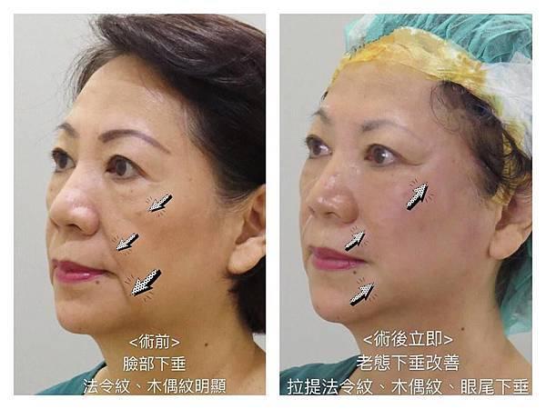 17瑀媽術前正面-王彥文醫師埋線藍鑽魚骨線來幫幫臉皮的忙高雄美妍醫美診所整形外科.jpg