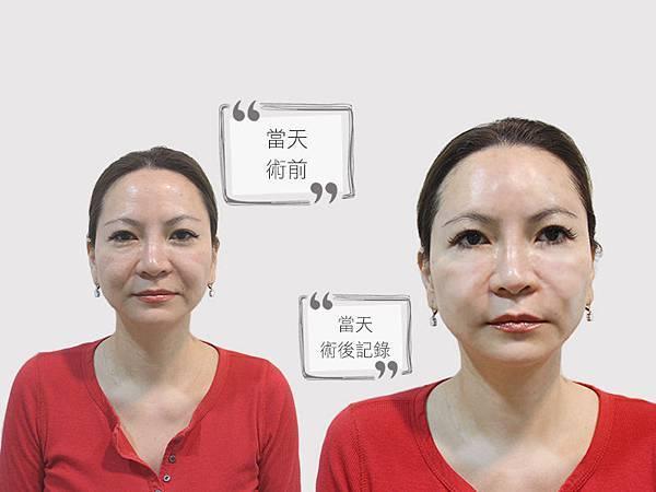 12-劉怡岑洢蓮絲Ellanse微整形高雄美妍醫美診所.jpg