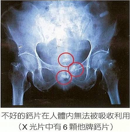 鈣片殘留.jpg