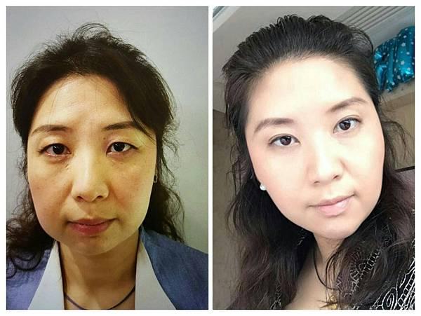 曼都整形外科李瑞田醫師 膠原蛋白注射 肉毒除皺拉提 玻尿酸注射案例