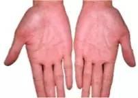 5丶手掌颜色红润的人