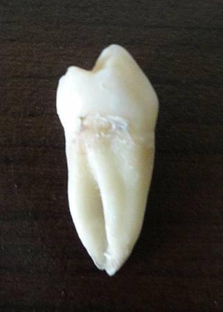 下排左邊小臼齒.JPG