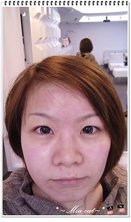 PS超美診所-雙機雷射療程 -術後保養完 (1).jpg