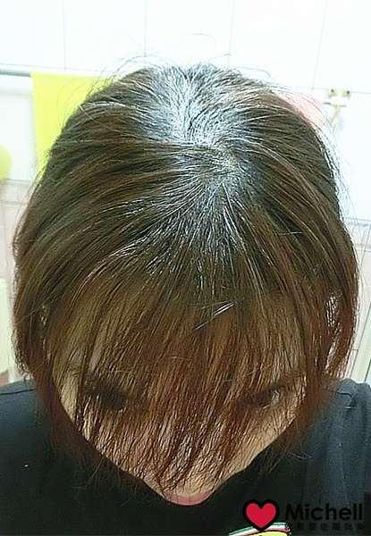 Dr's Formula 新升級洗髮精 改善各種頭皮問題的救星