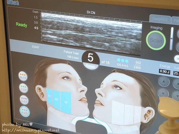 Ulthera極線音波拉皮