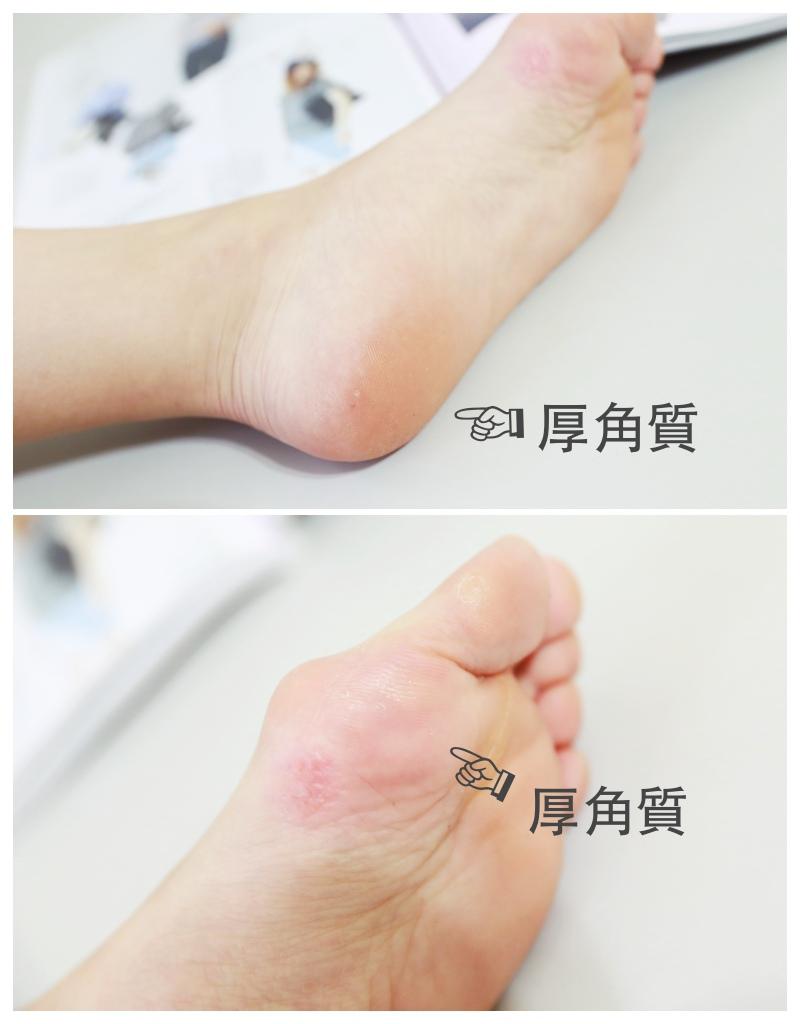 足膜推薦,腳皮去角質