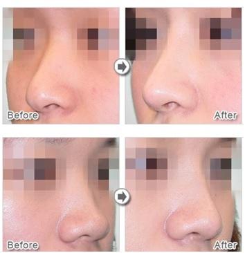 男性隆鼻案例01