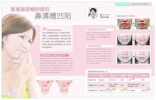 米洛斯_整形達人NO34漫談鼻溝槽手術 copy