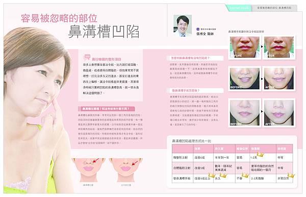 米洛斯_整形達人NO34漫談鼻溝槽手術-1 copy