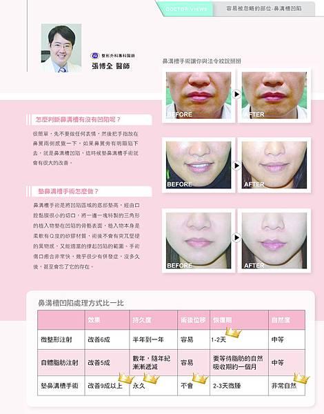 米洛斯_整形達人NO34漫談鼻溝槽手術-2 copy