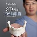 3D列印下巴精雕_01-1