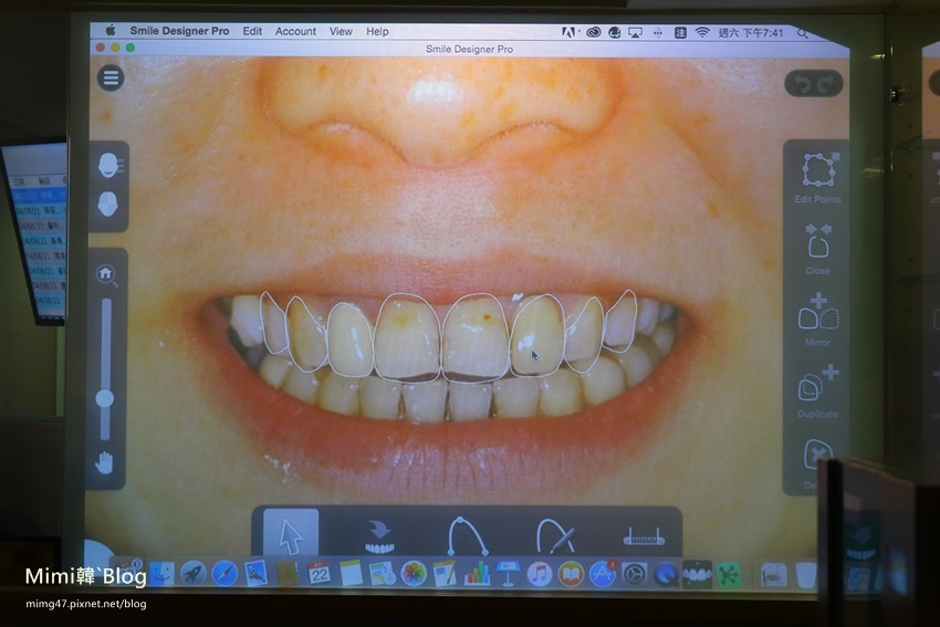 悅庭牙醫-10.jpg