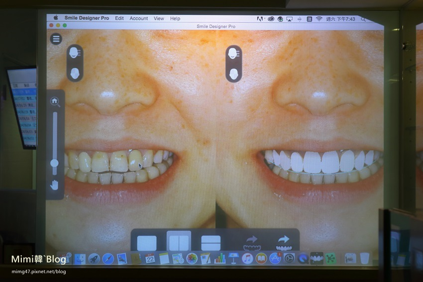 悅庭牙醫-11.jpg