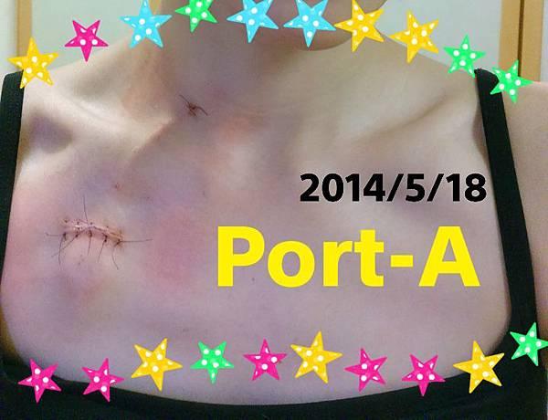 Port-A