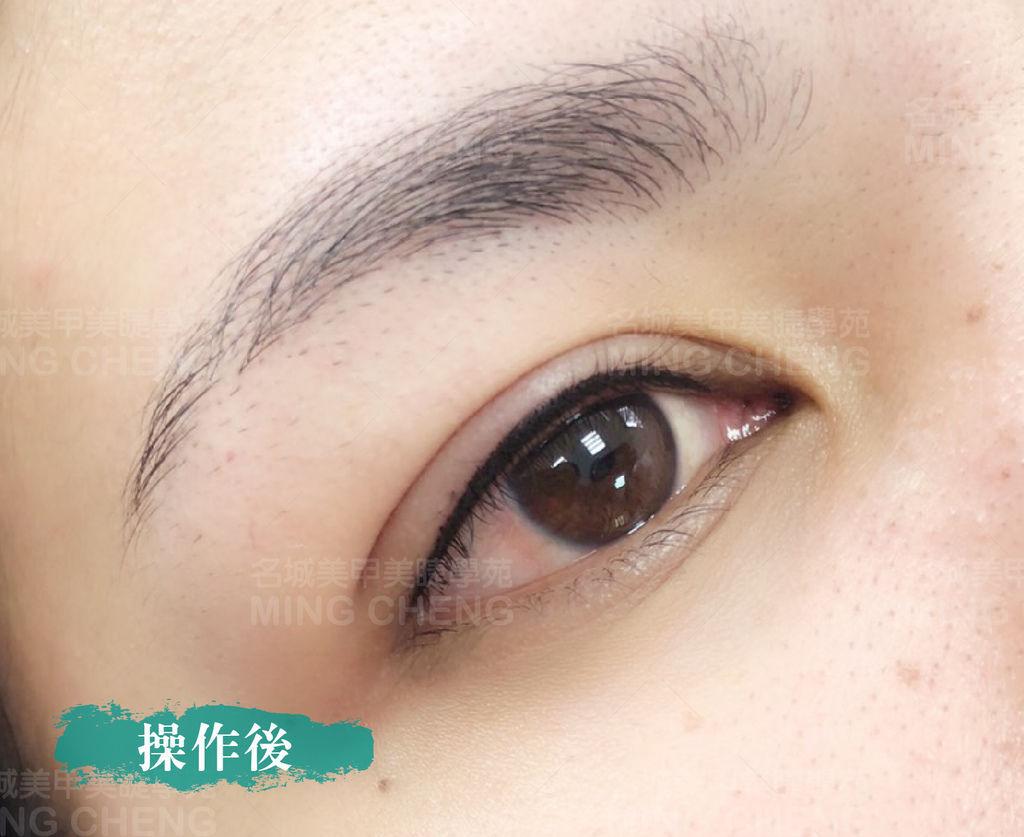 眼 後-03-03.jpg