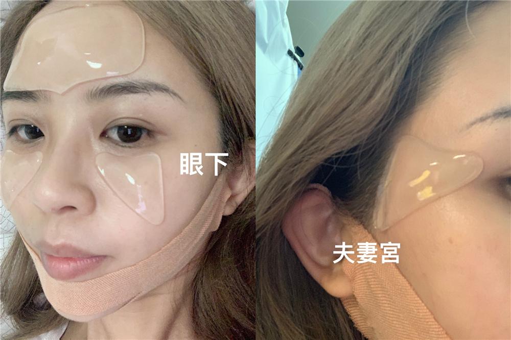 ID.AZ愛德愛麗 輪廓管理套組 V-塑臉帶 (15).jpg