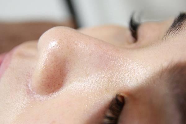 法莫拉打造肌膚的止水閥○草莓鼻掰掰冰河泥軟膜護理 (1).JPG
