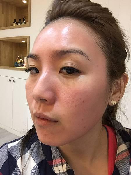 法莫拉→打造肌膚的止水閥01-1第一天做完三小時後.JPG