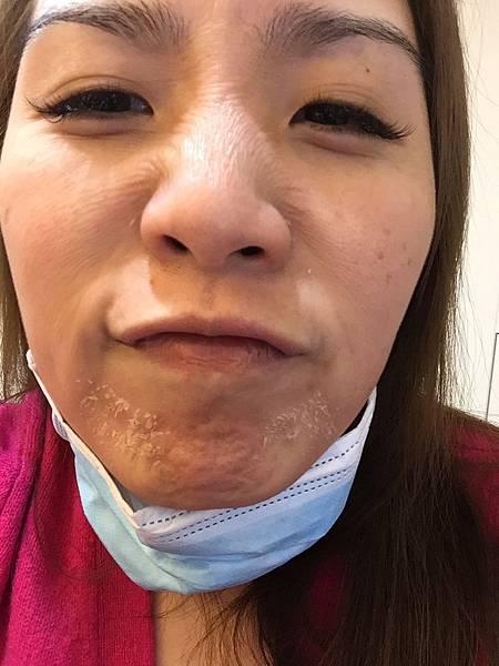 法莫拉→打造肌膚的止水閥03-第三天中午(素顏).JPG