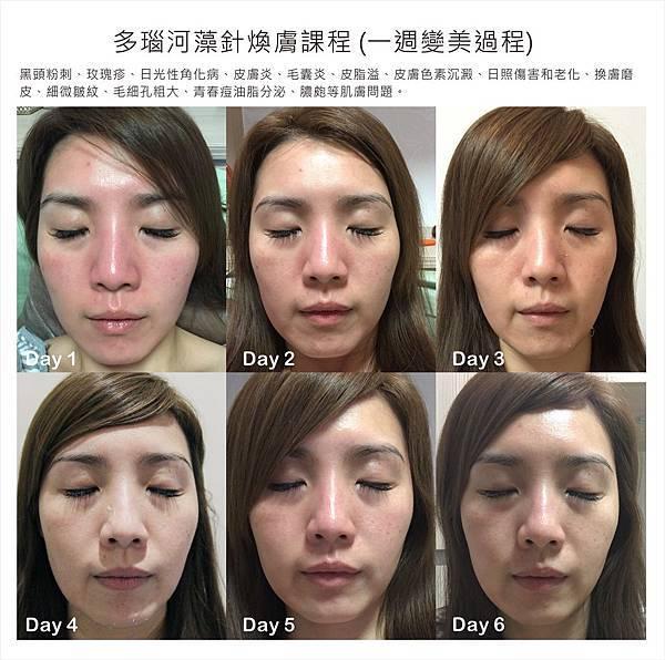 法莫拉→打造肌膚的止水閥→七天的肌膚變化.jpg