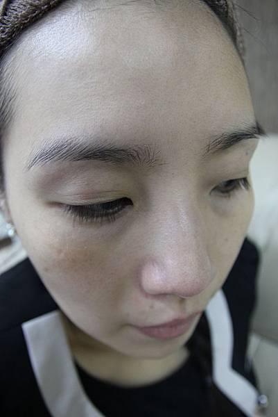 法莫拉→打造肌膚的止水閥→海綿微針(未做前) (1).JPG
