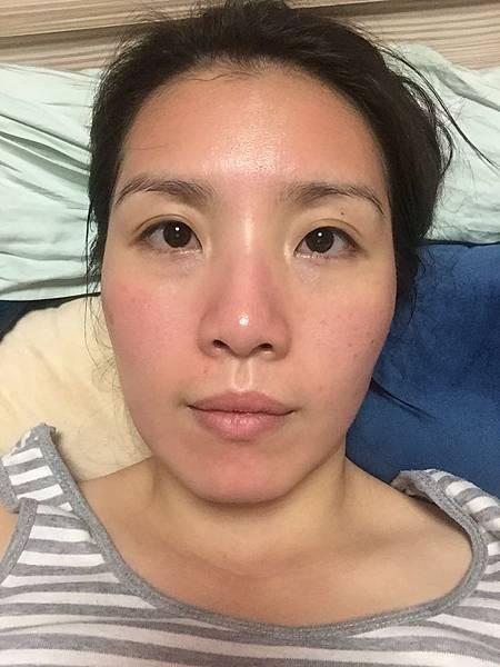 法莫拉→打造肌膚的止水閥→海綿微針(當天晚上要睡覺前).JPG