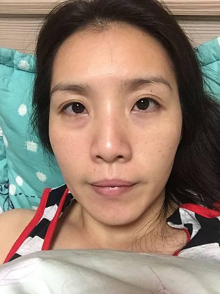 法莫拉→打造肌膚的止水閥→海綿微針(第2天睡覺前).JPG