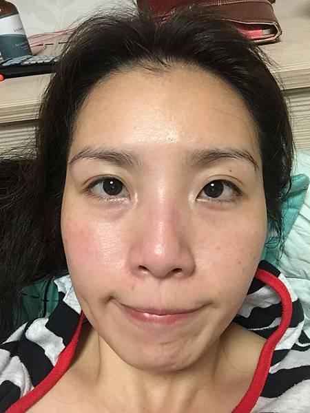 法莫拉→打造肌膚的止水閥→海綿微針(第三天晚上睡覺前).JPG