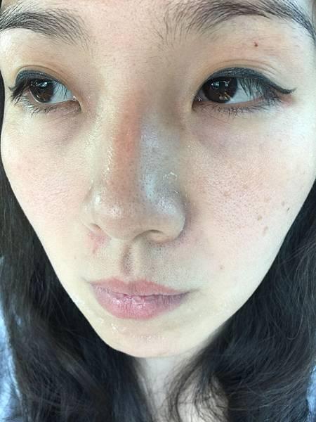 法莫拉→打造肌膚的止水閥→海綿微針中午後開始脫皮.JPG