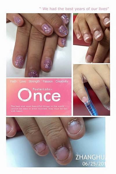 指甲啃咬症