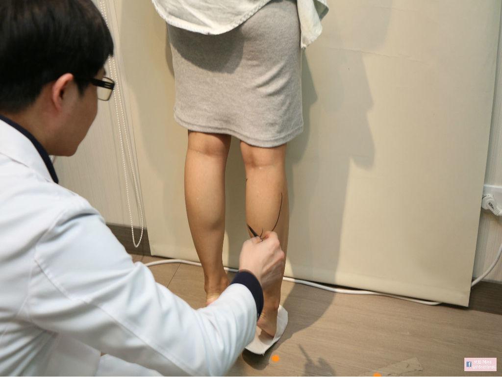 淨妍診所_肉毒小腿4.jpg
