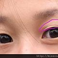 手術前眼睛2