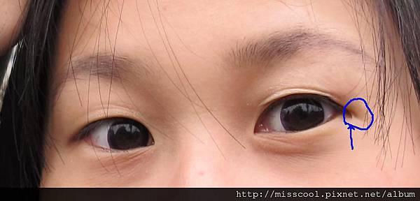 手術前眼睛1