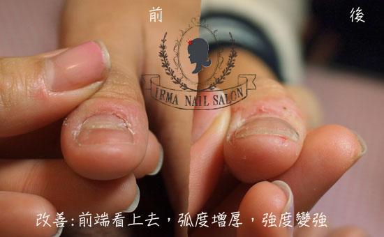 咬甲光療凝膠指甲處理(施做前後對照)正前端.jpg
