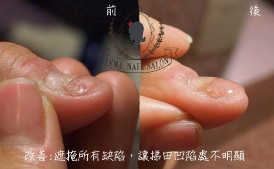 咬甲光療凝膠指甲處理(施做前後對照)側邊.jpg