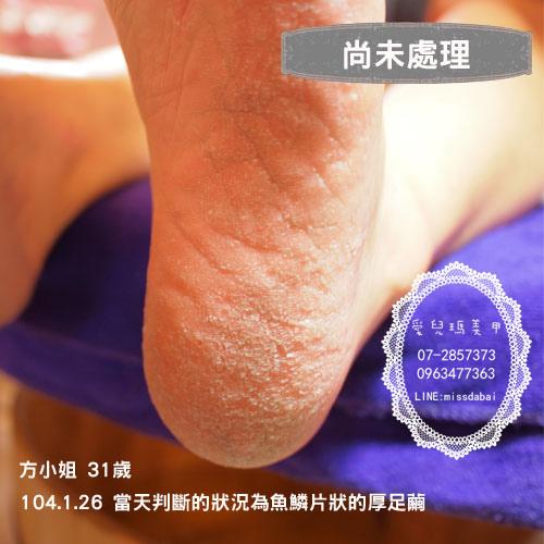 104.1.26方小姐足部保養(尚未處理).jpg